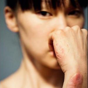 square-scar